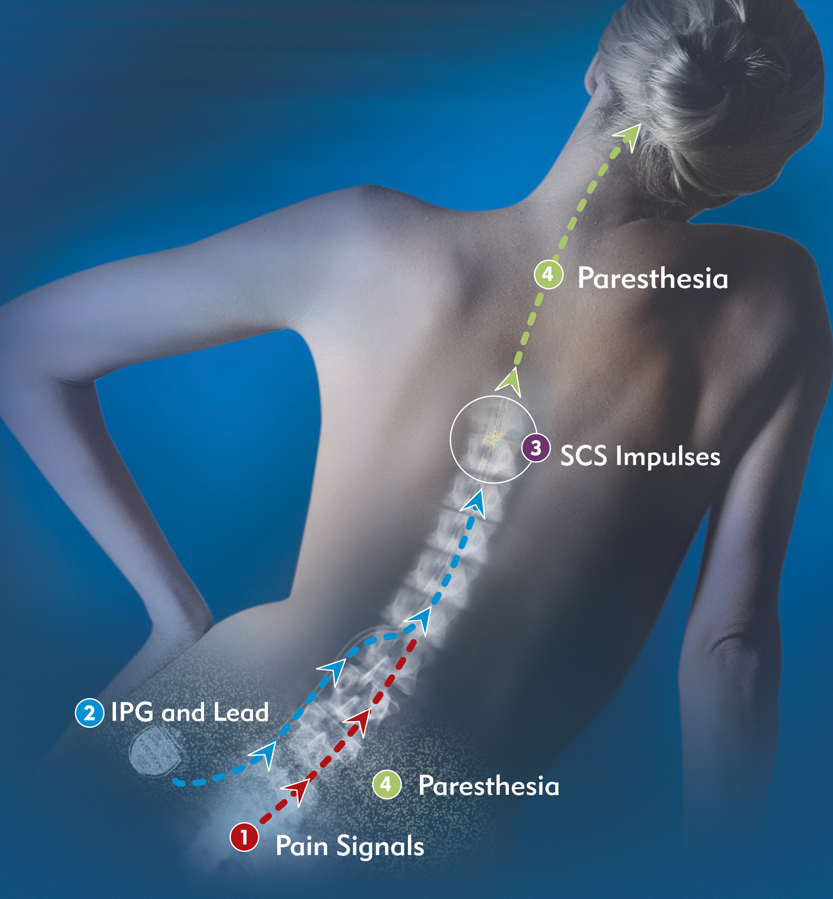 pictures Spinal Cord Stimulation for Back Pain Relief